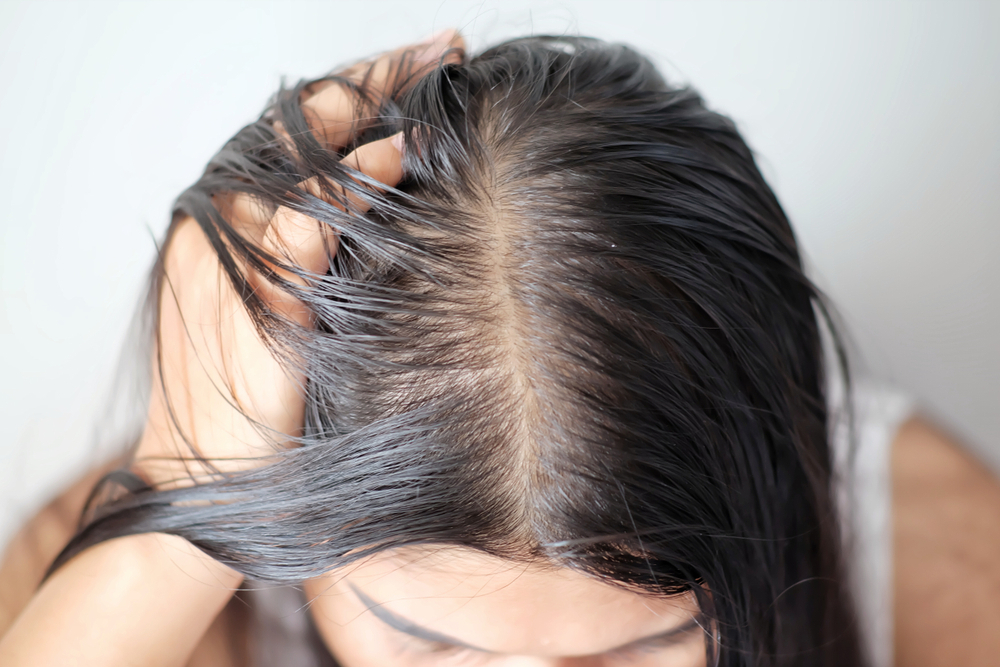 5 Steps to Get Rid of Clogged and Blocked Hair Follicles